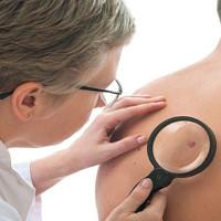 Trí tuệ nhân tạo có thể giúp phát hiện ung thư da u ác tính