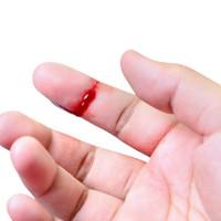 Thiết bị cầm tay giúp nhìn thấy vi khuẩn trên vết thương