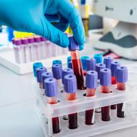 Xét nghiệm máu mới giúp phát hiện sớm 8 loại ung thư
