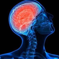 Các tế bào gốc giúp vá các tổn thương não ở những nạn nhân đột quỵ