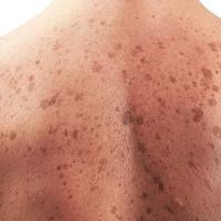 Phát hiện thú vị: Tìm thấy một vi khuẩn có thể giúp ngăn ngừa ung thư da