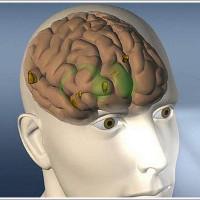 Các nhà khoa học dạy AI để chẩn đoán ung thư não